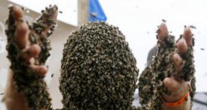 Bee-sting-survivor