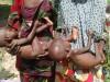 malnourished-boko-haram victims