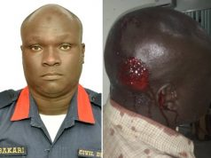 An NSCDC Officer Usman Bakari before and after Borno incident