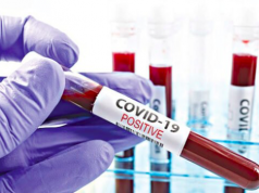 COVID-19 test lab